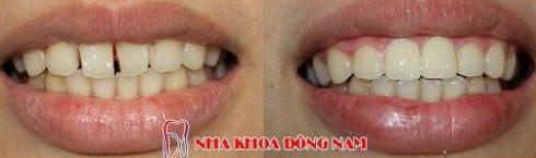 Các trường hợp bọc răng sứ veneer 8