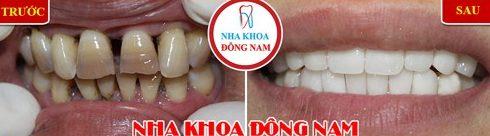 Các trường hợp bọc răng sứ veneer 9