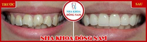 Cách trị đau răng hiệu quả nhất hiện nay 5