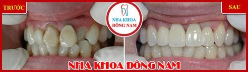 Cách trị đau răng hiệu quả nhất hiện nay