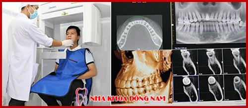 Cách trị đau răng hiệu quả nhất hiện nay 8