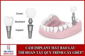 Cắm ghép Implant mất thời gian bao lâu