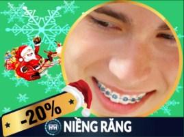 Khuyến mãi Noel 2017 và tết tây 2018 dịch vụ niềng răng