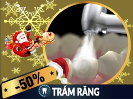 Khuyến mãi Noel 2017 và tết tây 2018 dịch vụ trám răng