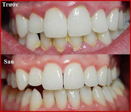 Hiện tượng đau nhức răng là do đâu 2