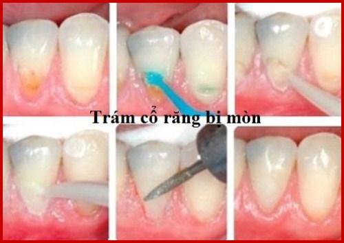 khuyết cổ chân răng nên khắc phục bằng cách nào tốt nhất 3
