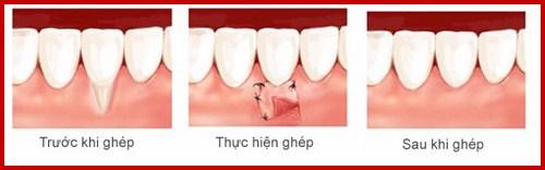 khuyết cổ chân răng nên khắc phục bằng cách nào tốt nhất 4
