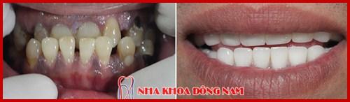 khuyết cổ chân răng nên khắc phục bằng cách nào tốt nhất