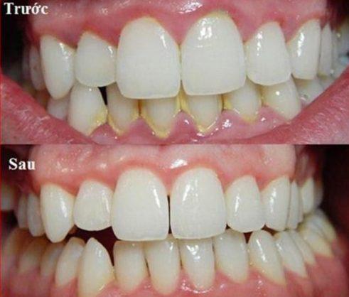 làm cách nào để răng lung lay được chắc lại 3