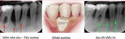 làm cách nào để răng lung lay được chắc lại 4