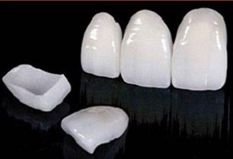 Làm răng sứ Veneer mới có cần màu răng nhiều không 1