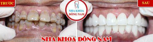 Làm răng sứ Veneer mới có cần màu răng nhiều không 2