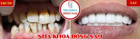 Làm răng sứ Veneer mới có cần màu răng nhiều không 3