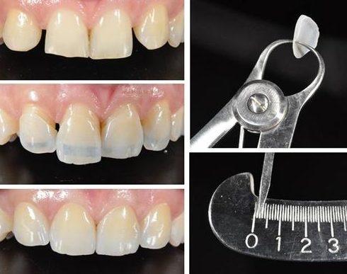Làm răng sứ Veneer mới có cần màu răng nhiều không 7