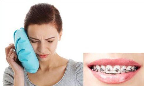 Làm thế nào để giải quyết tác hại của niềng răng 1