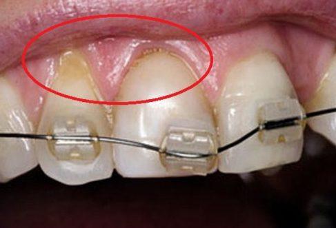 Làm thế nào để giải quyết tác hại của niềng răng 2