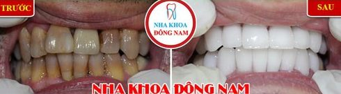 Làm thế nào để giải quyết tác hại của niềng răng 3
