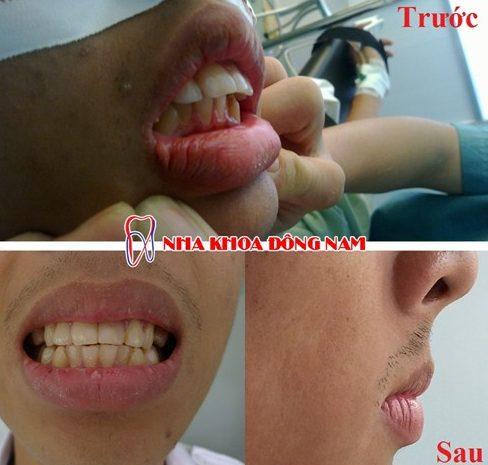 Làm thế nào để giải quyết tác hại của niềng răng 5