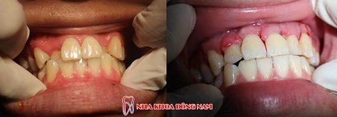 Làm thế nào để giải quyết tác hại của niềng răng 6