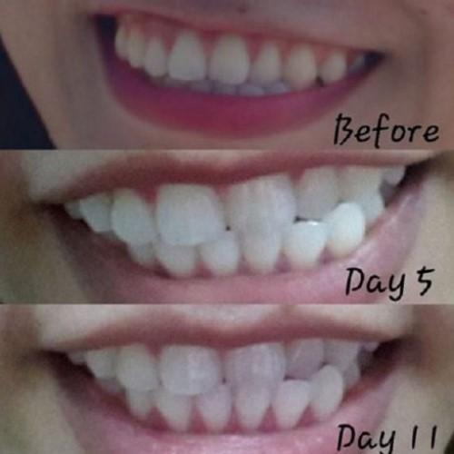 ưu điểm của miếng dán trắng răng
