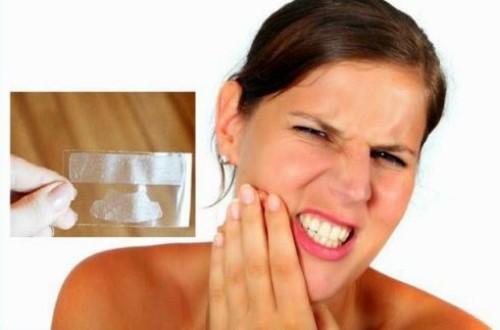 ê buốt khi dùng miếng dán trắng răng