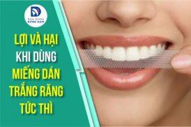 Lợi và hại khi dùng miếng dán trắng răng tức thì