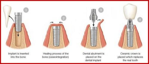 Lý do nên chọn cấy ghép Implant thay vì cầu răng sứ 1