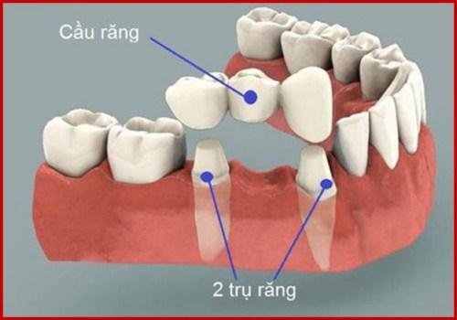 Lý do nên chọn cấy ghép Implant thay vì cầu răng sứ 2