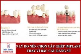 Lý do nên chọn cấy ghép Implant thay vì cầu răng sứ