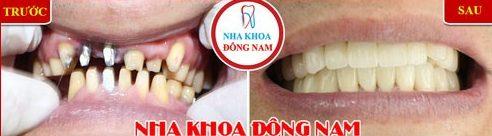 Lý do nên chọn cấy ghép Implant thay vì cầu răng sứ 4