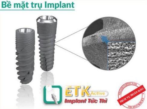 Lý do nên chọn cấy ghép Implant thay vì cầu răng sứ 6