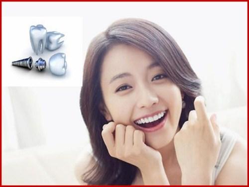Lý do nên chọn cấy ghép Implant thay vì cầu răng sứ 8