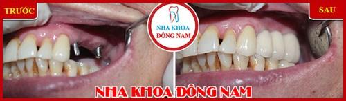 nguyên nhân và cách điều trị đau răng cấp tốc 7