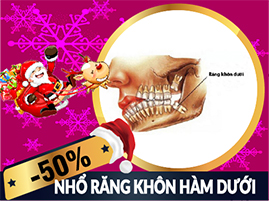 nha-khoa-dong-nam-khuyen-mai-nho-rang-khon-ham-duoi