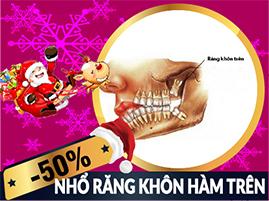 nha-khoa-dong-nam-khuyen-mai-nho-rang-khon-ham-tren