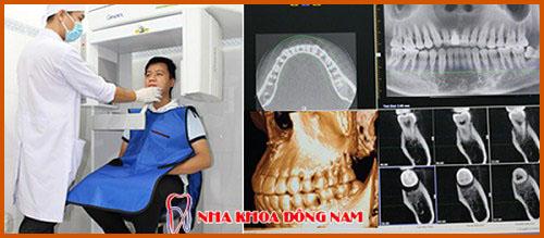 Nha khoa làm răng sứ Veneer tốt nhất hiện nay 10