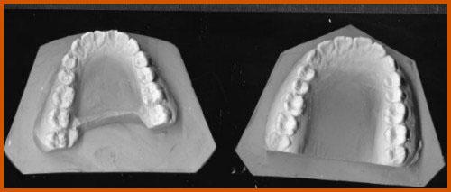 lấy dấu mẫu răng tại nha khoa làm răng sứ Veneer