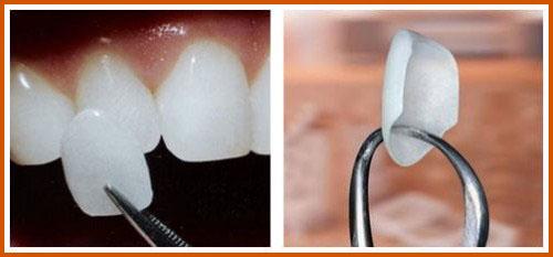 Nha khoa làm răng sứ Veneer tốt nhất hiện nay 5
