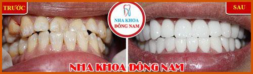 Nha khoa làm răng sứ Veneer tốt nhất hiện nay 6