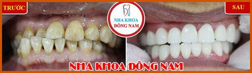 Nha khoa làm răng sứ Veneer tốt nhất hiện nay 7