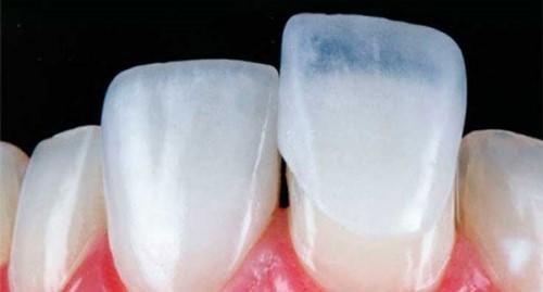 mặt dán răng sứ