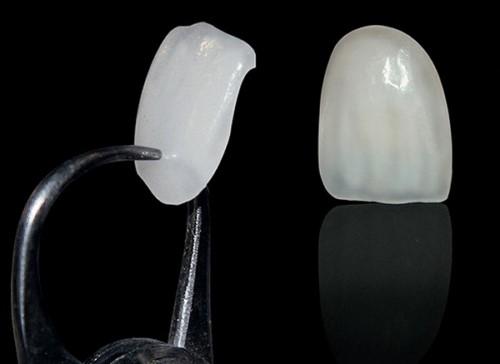 mặt dán sứ laminate