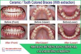 nhổ răng để niềng răng chỉnh nha có ảnh hưởng gì không