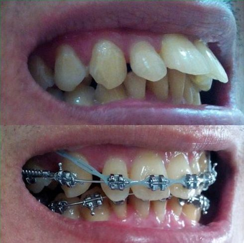 Nhổ răng để niềng răng chỉnh nha có ảnh hưởng gì không 1