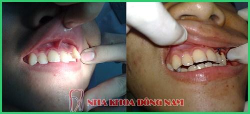 Nhổ răng để niềng răng chỉnh nha có ảnh hưởng gì không 2