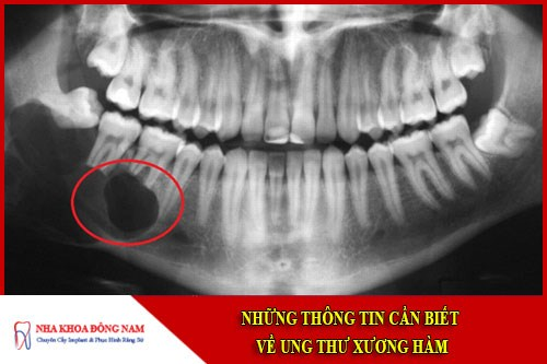Những thông tin cần biết về ung thư xương hàm