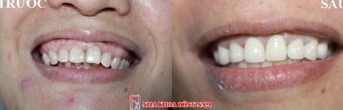 Niềng răng invisalign là gì hiệu quả mang lại như thế nào 10
