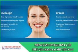 niềng răng invisalign hiệu quả như thế nào