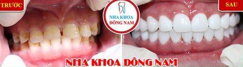 Niềng răng invisalign là gì hiệu quả mang lại như thế nào 8