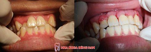 Niềng răng invisalign là gì hiệu quả mang lại như thế nào 9